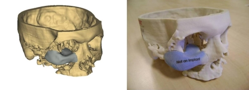 3d printed visual  medical objects