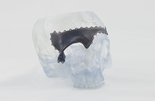 Skull implant by Materialise